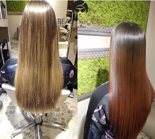 botox smedje kose